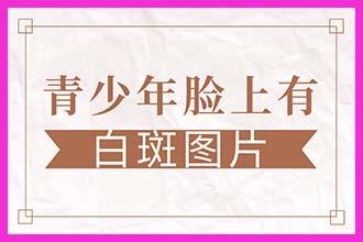 河南白巅疯医院约郑州西京-怎么证明白斑治疗有效