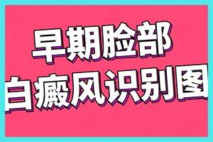 郑州西京专治青少年白斑找董思思专家,仁爱行医是根本