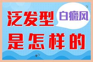 郑州治疗白斑病专科医院:白癜风的扩散时间大概是多久
