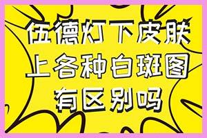 郑州轻度白癞风吃什么食物好