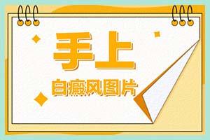 郑州西京医院怎样-一般治疗会使用哪些仪器