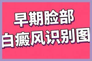 """郑州西京指出男性治白不要让""""难言之隐""""困扰"""