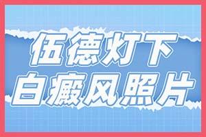 河南选择正规治白医院【郑州西京白癜风医院】哪家好